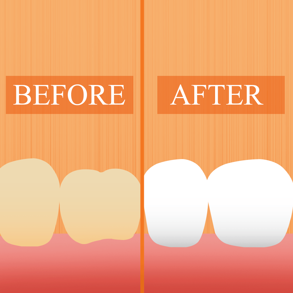 Image For Teeth Whitening Page