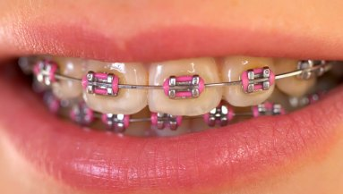 How much is the cost of braces in the philippines asian sun dental affordable braces in quezon city in asian sun solutioingenieria Image collections