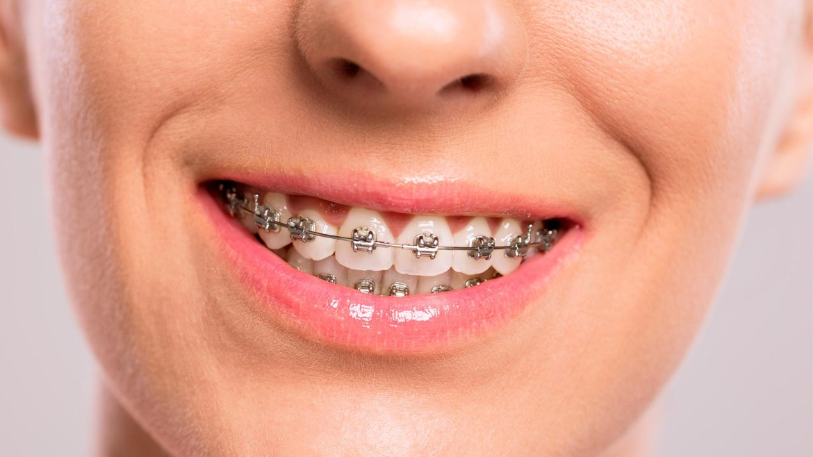featured image for How Much Are Braces in the Philippines