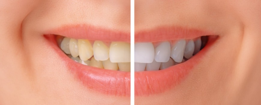 featured image for teeth whitening in the Philippines