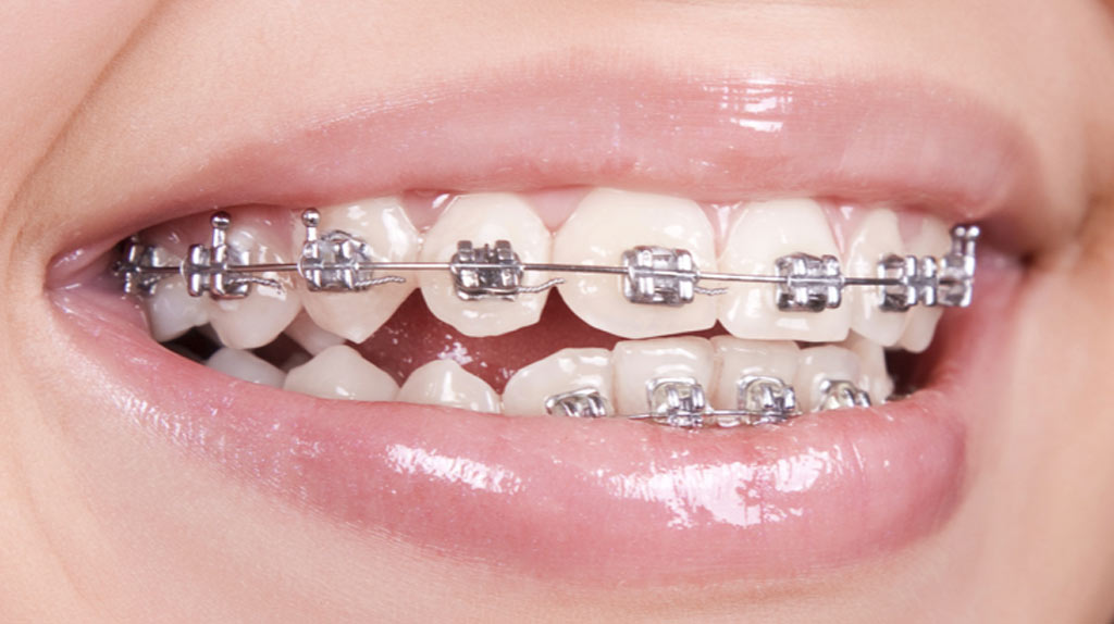 How much is the cost of braces in the philippines asian sun dental image for the cost of braces in the philippines solutioingenieria Image collections