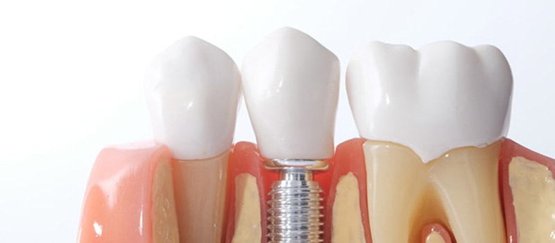 image for best dental services in manila