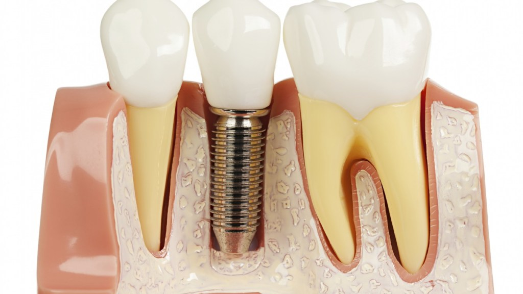 reasons why a dental implant is worth it