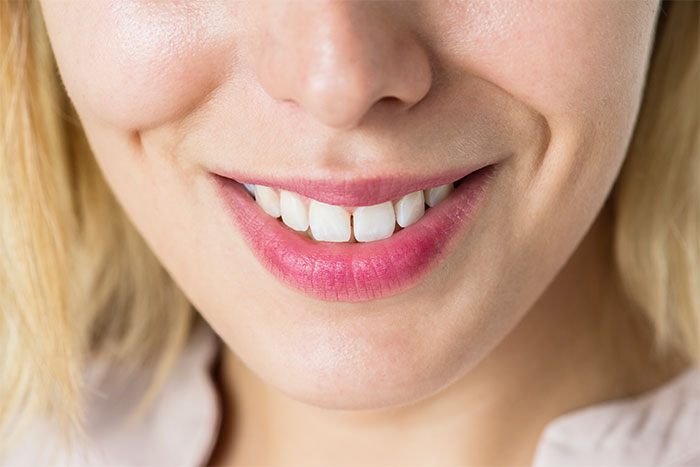 The Price of Teeth Retainers in the Philippines - Asian Sun