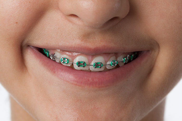 featured image for price of orthodontics in the Philippines