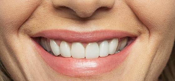 image for Should I get dentures