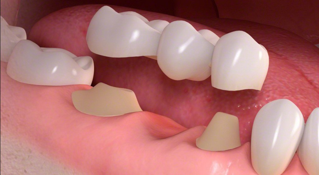Is A Dental Bridge Worth It