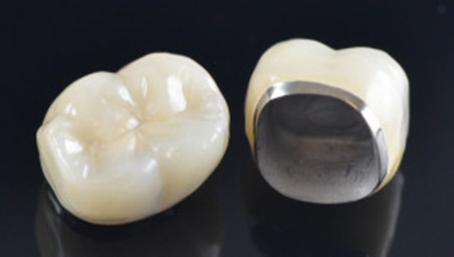 reasons why a dental crown is worth it