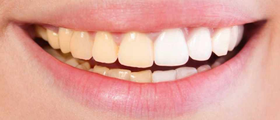 Is teeth whitening worth it