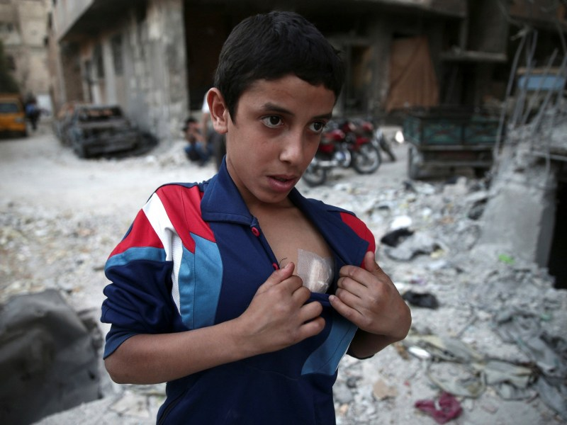 A boy shows off his wound near a damaged building after an airstrike in the rebel held Douma neighbourhood of Damascus, Syria October 4, 2016. REUTERS/Bassam Khabieh