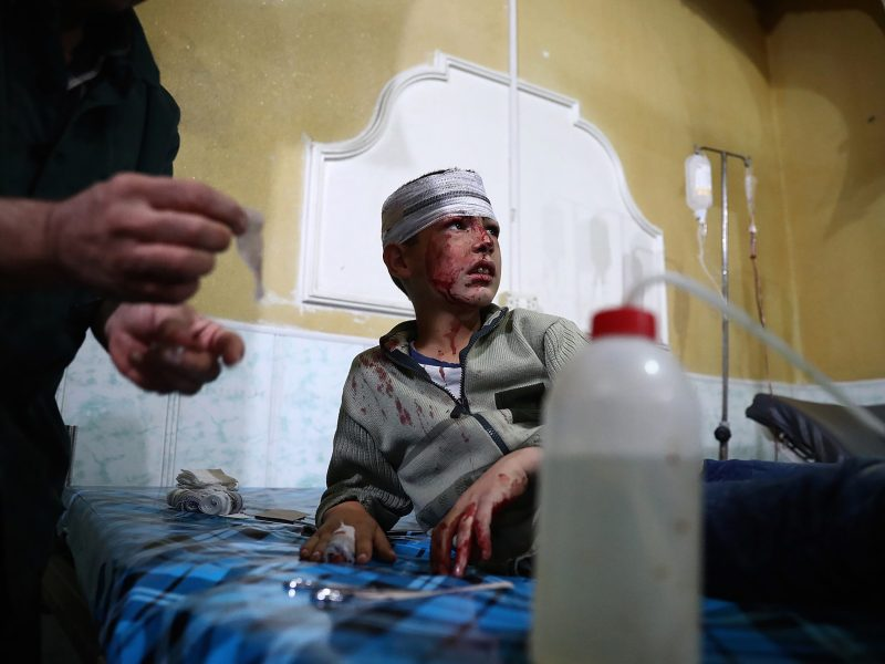 A wounded Syrian boy receives treatment at a make-shift hospital after shelling on the rebel-held town of Douma, east of the Syrian capital Damascus, in October. Photo: AFP / Abd Doumany