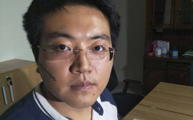 Chinese national Yan suffered a facial cut in a knife attack in Bangalore on Saturday night. Photo: indiatoday