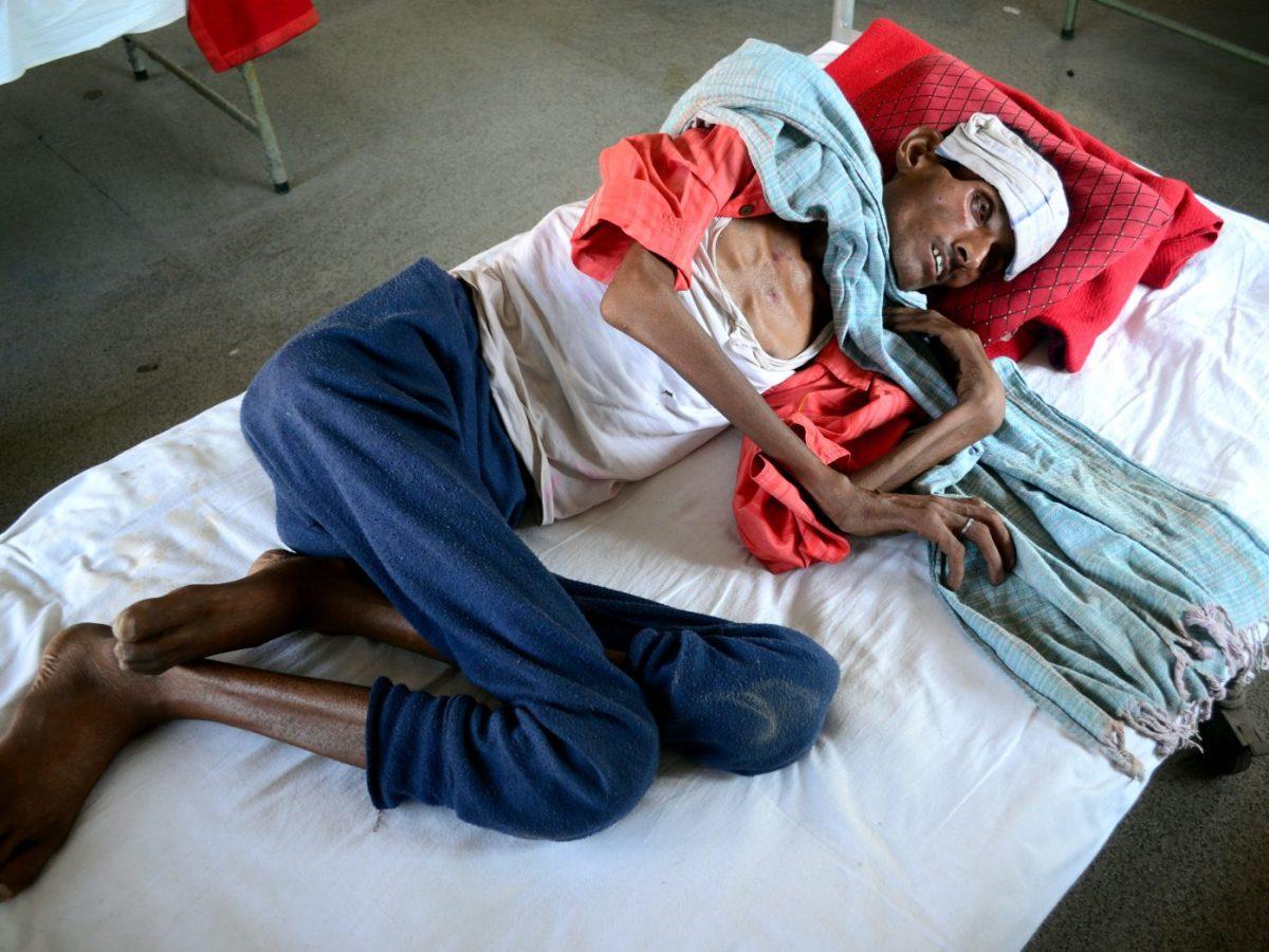 Rambabu, 52, a tuberculosis sufferer, is pictured in Allahabad in Uttar Pradesh. Photo: AFP via Ritesh Shukla / NurPhoto