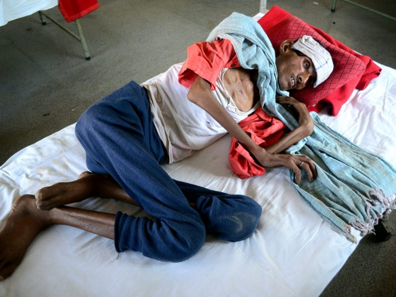 Rambabu, 52, a tuberculosis sufferer, is pictured in Allahabad in Uttar Pradesh. Photo: AFP via Ritesh Shukla / NurPhoto