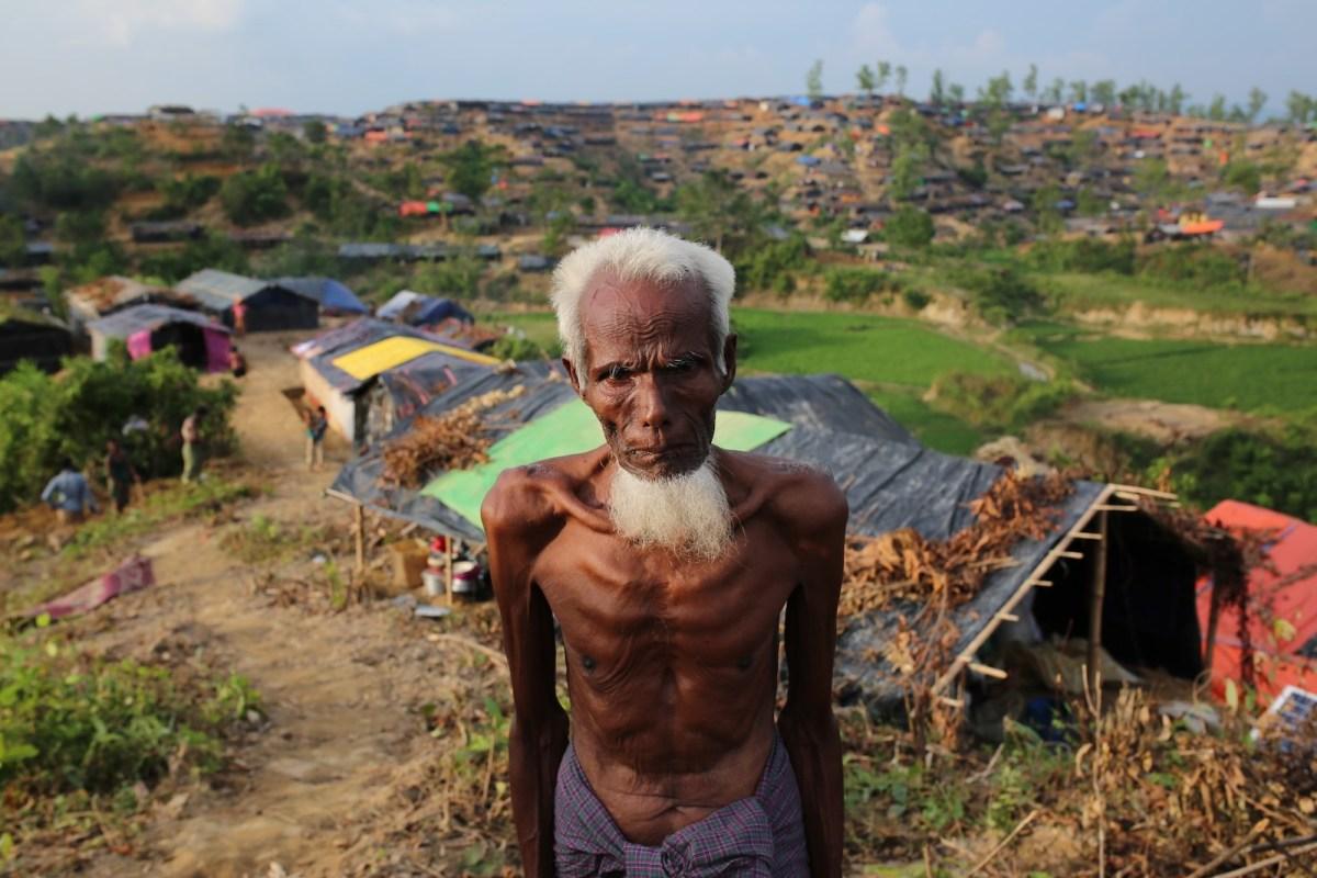 A Rohingya man who fled oppression during military operations in Myanmar's Rakhine state at a makeshift camp in Teknaff, Bangladesh on September 26, 2017. Photo: Anadolu Agency via AFP/ Zakir Hossain Chowdhury