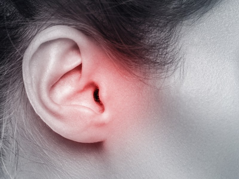 Close up of female ear with source of pain. Photo: iStock