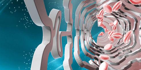 An artist's rendering of the drug-eluting stent. Photo: Handout