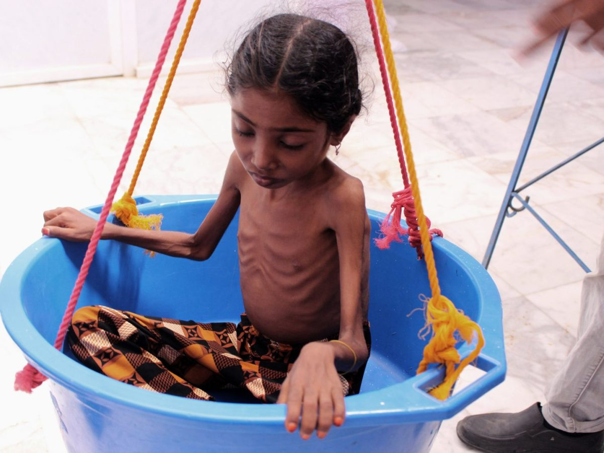 A Yemeni child suffering from severe malnutrition is weighed at a treatment center in a hospital in Yemen's northwestern Hajjah province, on October 25, 2018. Photo: Essa Ahmed / AFP