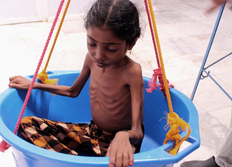 2018年10月25日,也門西北部哈傑(Hajjah)一間醫院的治療中心為一名嚴重營養不良的也門兒童磅重。相片:Essa Ahmed / AFP