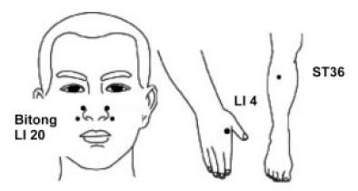 FCIM-Alleviate Nasal Congestion