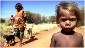 health-care aboriginal