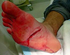 herida2