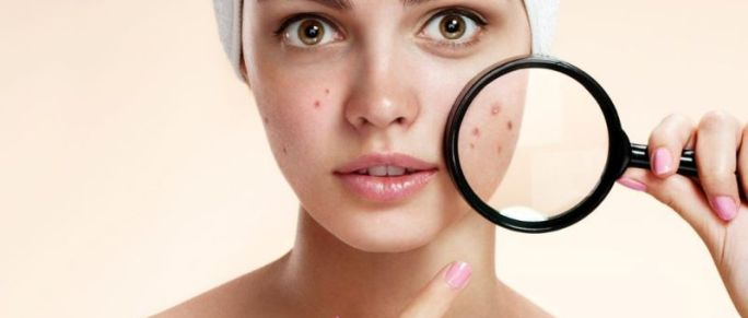 thoughts on acne treatments