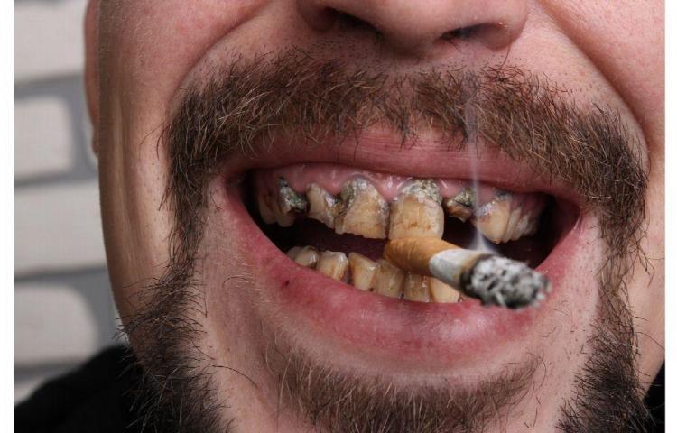 Cancer bucal por tabaquismo