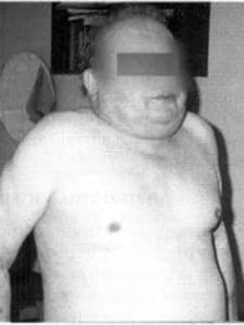 pierderea în greutate cu emfizem)