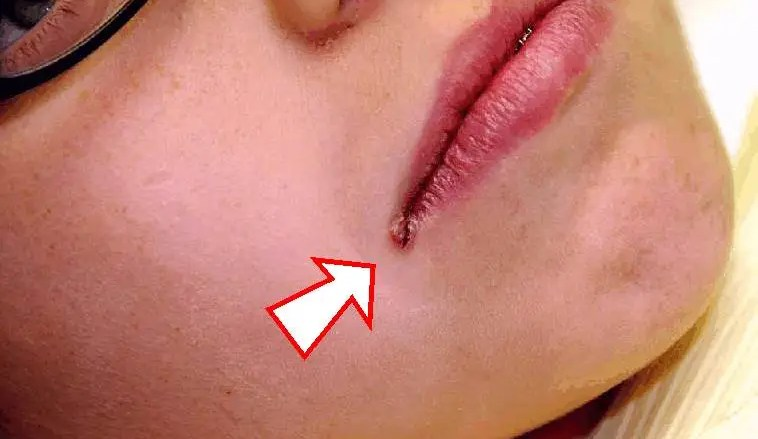 Sores in the corners of the mouth - Angular Cheilitis
