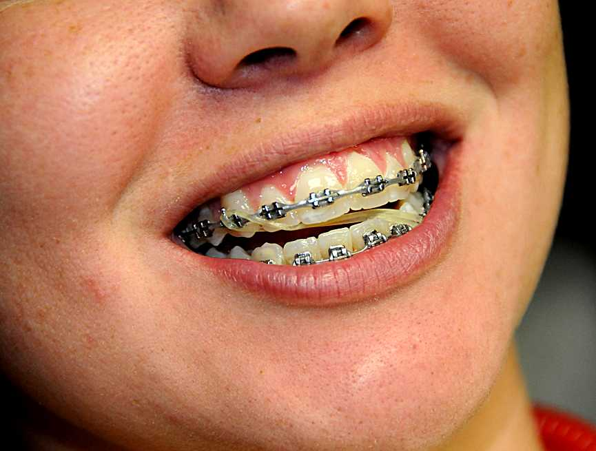 What Do The Elastic Rubber Bands On Braces Do Ask An Orthodontist Com