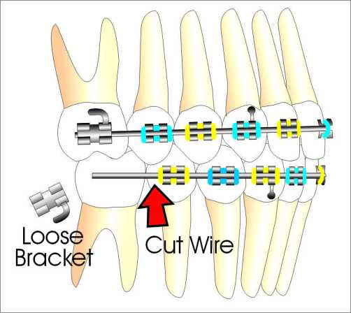 Cut Orthodontic Wire Here