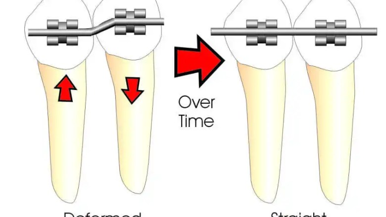 How an arch wire moves teeth