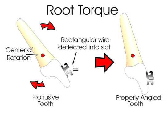 Root Torque