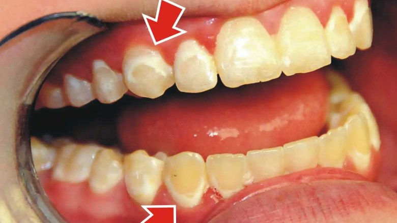 How Do You Treat White Spots After Braces Ask An Orthodontist Com
