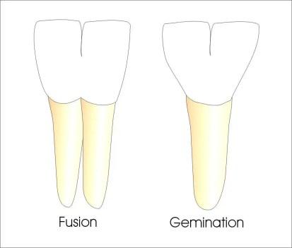 Tooth Fusion & Gemination
