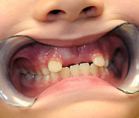 Unerupted Central Incisors Due to Supernumerary Teeth