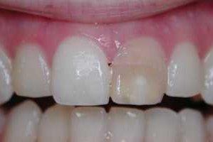 Что важно знать, если кариес разрушил глубоко лежащие внутренние ткани зуба…. Что нужно делать в домашних условиях если чернеют зубы