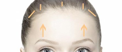 Brow Lifr Surgery in Singapore