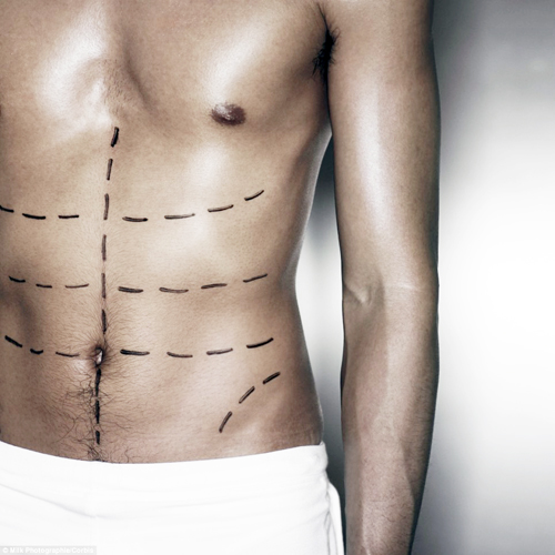 cosmetic surgery in Singapore man body