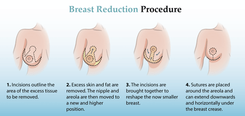 reduction of breast in singapore