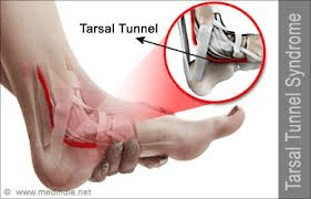 Training check in – Tarsal Tunnel Syndrome