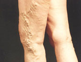 Varicose veins - unsightly veins which can cause serious health issues