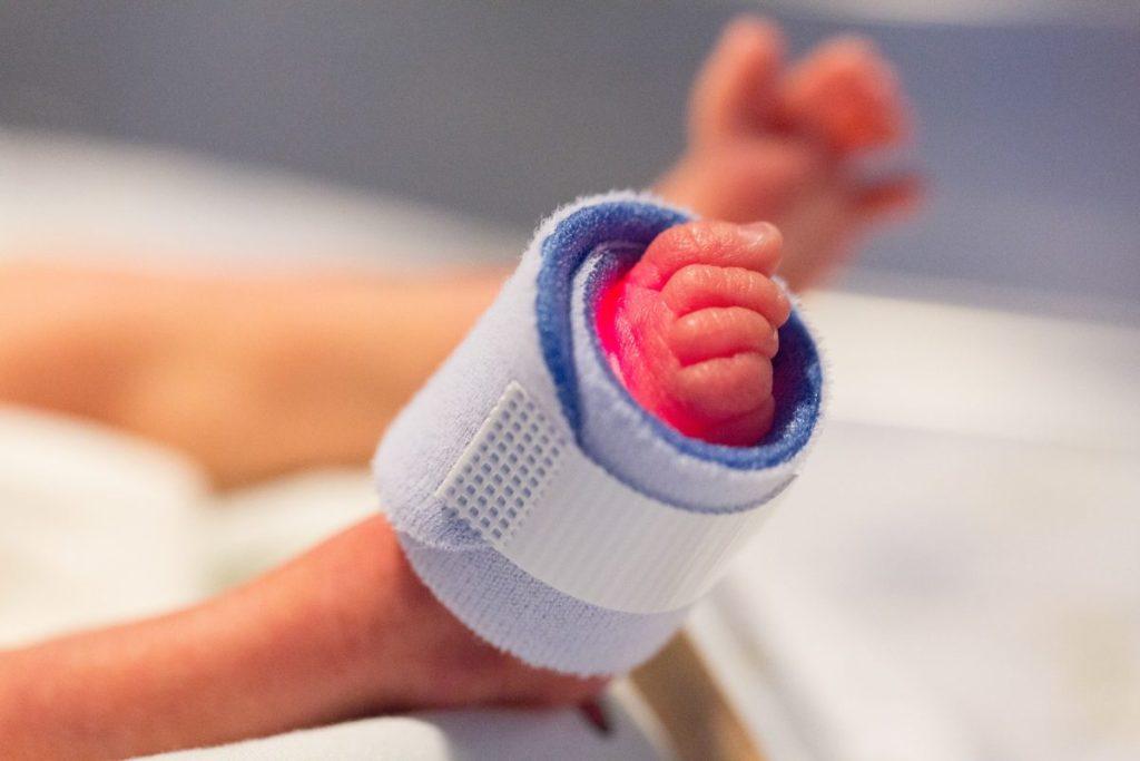 Foto de un pie de bebé prematuro con un sensor de constantes, en la uci, beneficiario de la donación de leche materna
