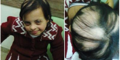 https://i2.wp.com/asploro.com/wp-content/uploads/2020/05/Fig-6A_A-thirteen-year-old-girl-with-Down-syndrome-and-alopecia-areata.jpg?resize=400%2C200&ssl=1