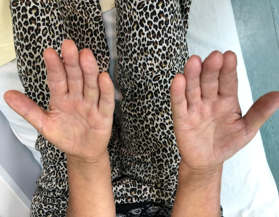 A Case with Palmar Fibromatosis with Four Extremity Fibromatosis: Case Report