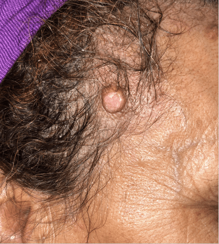 Different Dermoscopic Aspects of Molluscum Contagiosum in the Same Patient: Case Report