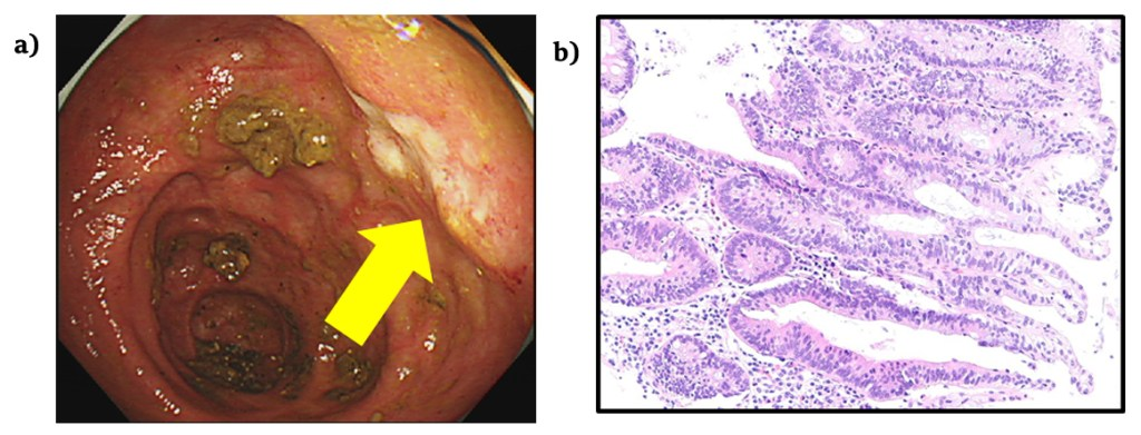 Disseminated Colitic Cancer Identified in Two Patients who had Undergone Surveillance Colonoscopies: A Case Report