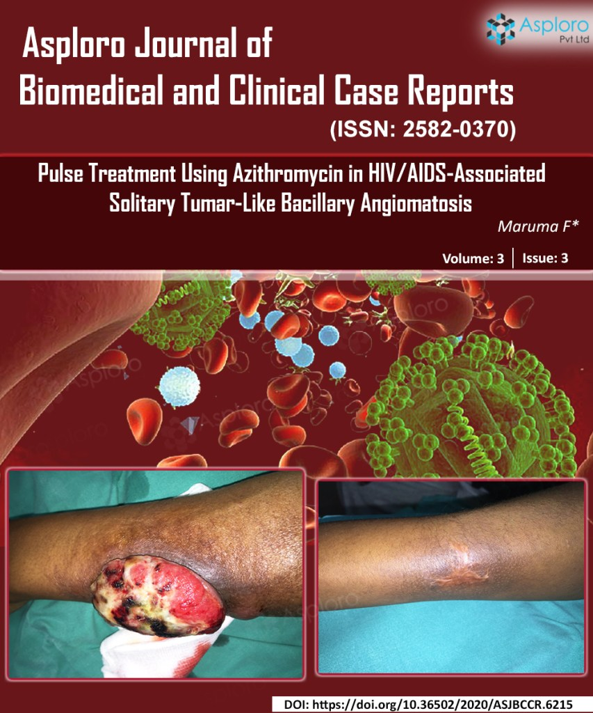 Pulse Treatment Using Azithromycin in HIV/AIDS-Associated Solitary Tumor-Like Bacillary Angiomatosis