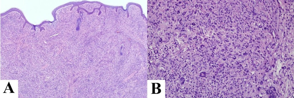 Multiple Adult Xanthogranuloma: A Rare Case Report with Characteristics